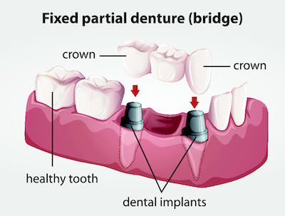 Diagram of a fixed partial denture bridge done by our 61821 dentist