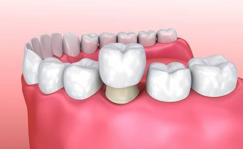 Diagram of dental crowns in Champaign, IL covering damaged tooth
